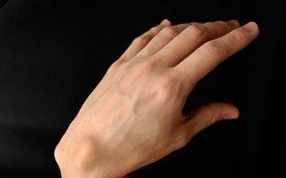 Основные методы лечения гигромы в домашних условиях