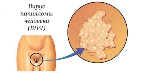 Кондиломы в уретре у женщин: причины, лечение