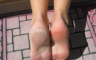 Особенности лечения мозолей на ногах
