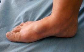 Причины появления гигромы на ноге