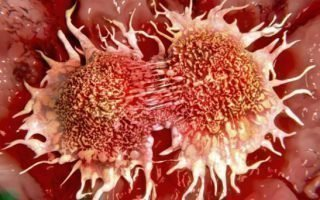 Характеристика ВПЧ 56 (онкогенного типа)