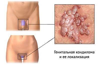 Остроконечныепапилломы
