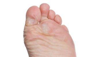 Лечение сухих мозолей на пальцах ног