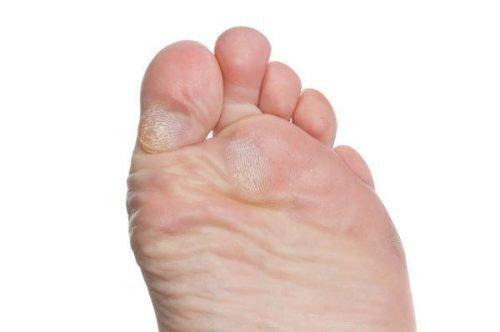 Сухие мозоли на ногах: как убрать, народные средства чем можно вылечить