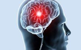 Лечение гигромы головного мозга