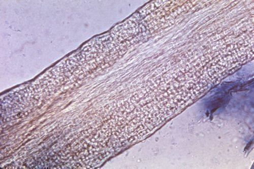 Trichophyton endothrix