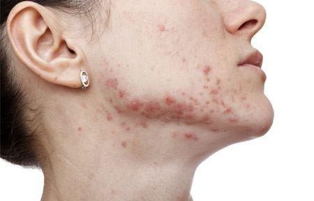 Пятна на коже, похожие на лишай: чешутся и нет, бляшки, лечение
