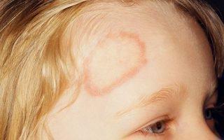 Как вылечить стригущий лишай у ребенка: проверенные средства