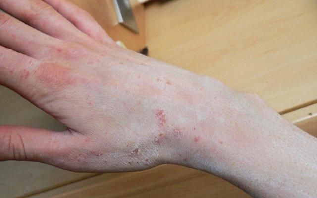 Лишай на руке лечение - Все про грибок