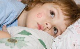 Лечение лишая у ребенка