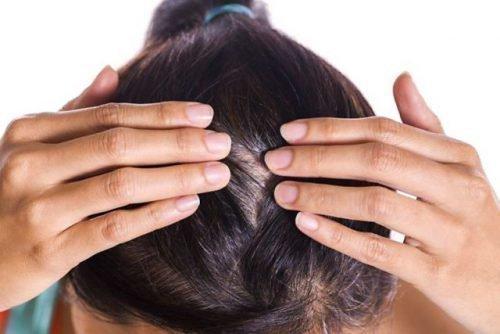 Микроспория на голове