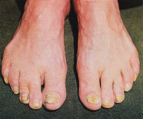 Микроспория ногтей