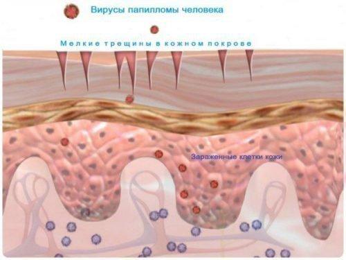 Вирус папилломы