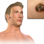 Характеристика и лечение узелковой базалиомы