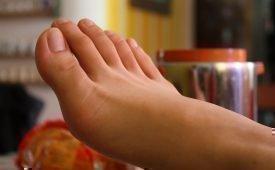 Как лечить стержневую мозоль на мизинце ноги